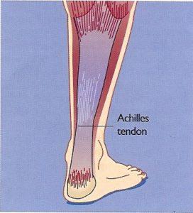 Ankle Procedures Dr-Peter-Smith-Achilles-Tendon