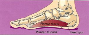 Plantar Fasciitis Procedures