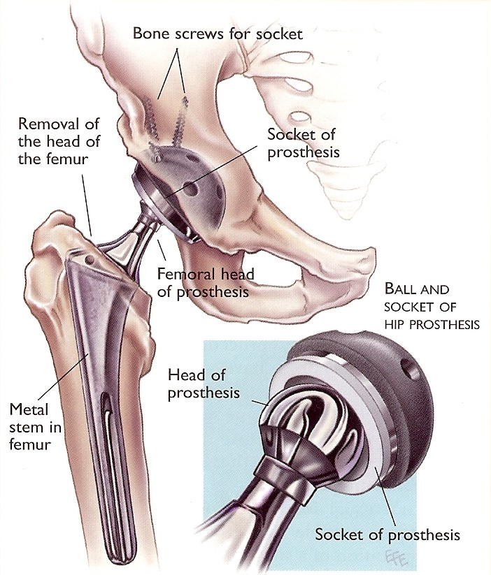 dr-peter-smith-hip-repacement_2