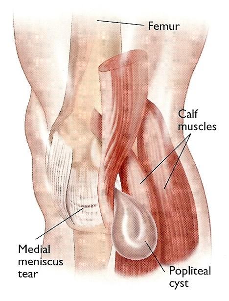 dr-peter-smith-knee-arthroscopy-5