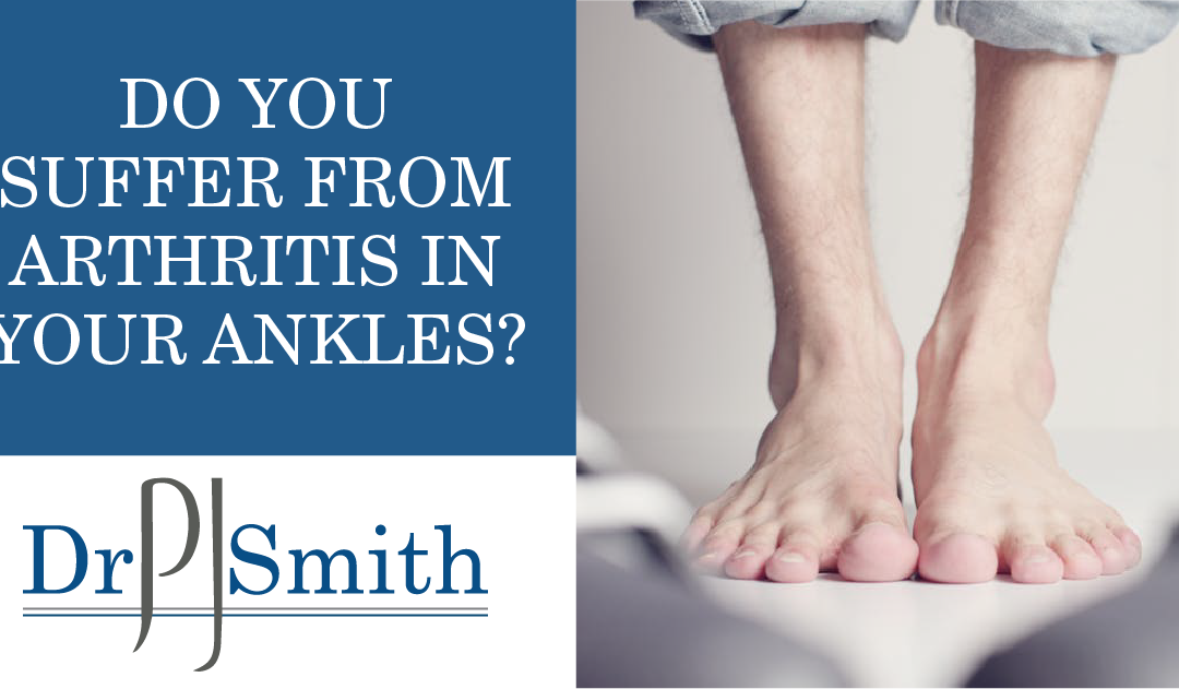 Do you suffer from arthritis in your ankles?